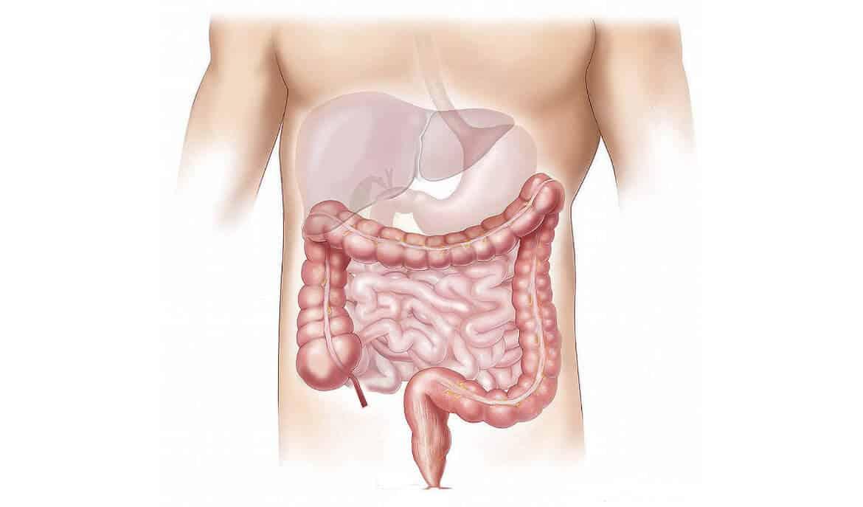 Darmprobleem plakkerige slappe ontlasting